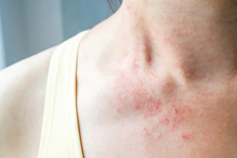 Triệu chứng bệnh da mẩn đỏ và ngứa