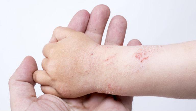 Viêm da dị ứng có lây không là thắc mắc chung của rất nhiều người