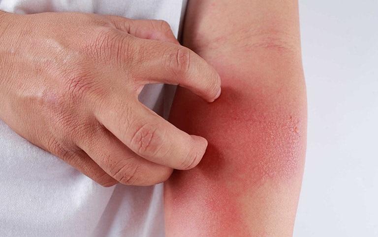 Viêm da dị ứng là một trong những bệnh lý da liễu không hiếm gặp