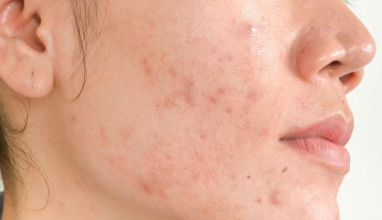 Viêm da tiếp xúc dị ứng ở mặt là một trong những bệnh lý da liễu không hiếm gặp