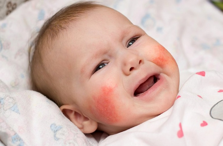 Với sức đề kháng, hệ miễn dịch yếu, trẻ em là một trong những đối tượng rất dễ bị viêm da dị ứng