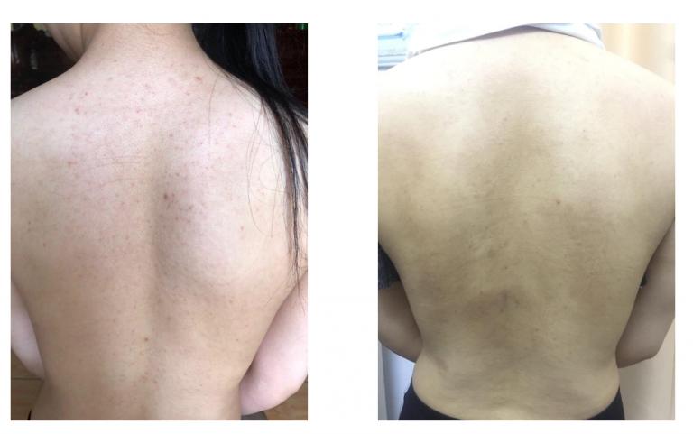 Phản hồi khách hàng về phương pháp phi kim trị viêm nang lông