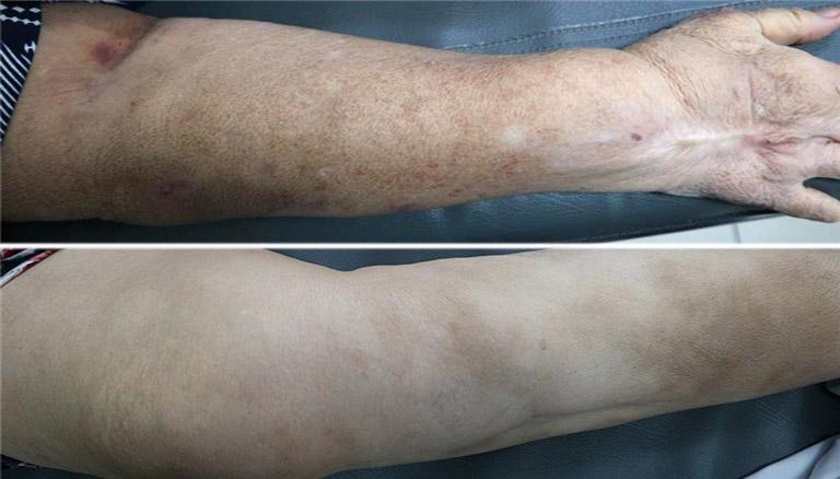 Lạm dụng corticoid, người bệnh gặp phải tác dụng phụ, những vết bầm và sạm rải rác trên da