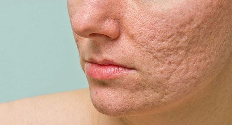 Sẹo do bệnh để lại ảnh hưởng rất lớn đến nhan sắc của người bệnh