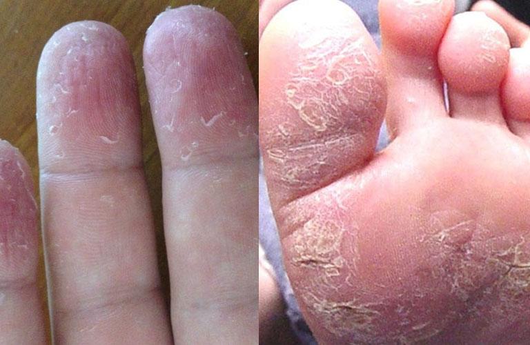 Triệu chứng điển hình của á sừng là da khô, bong tróc