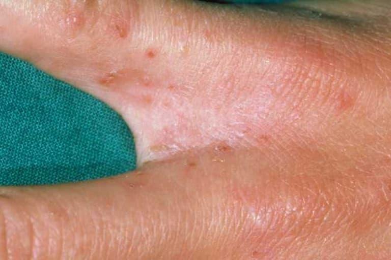 Bệnh ghẻ là nguyên nhân gây ngứa kẽ ngón tay