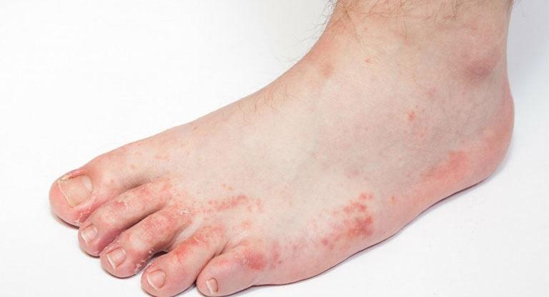 Bệnh tổ đỉa bàn chân