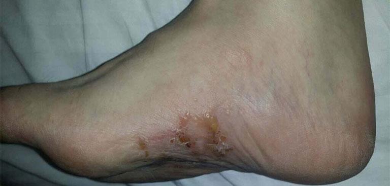 Bệnh tổ đỉa lòng bàn chân