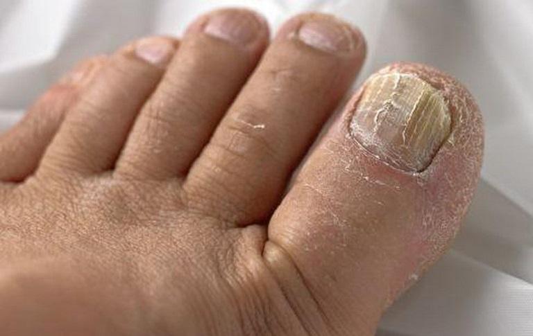 Bệnh tổ đỉa ngón chân sẽ khiến móng chân bị biến dạng