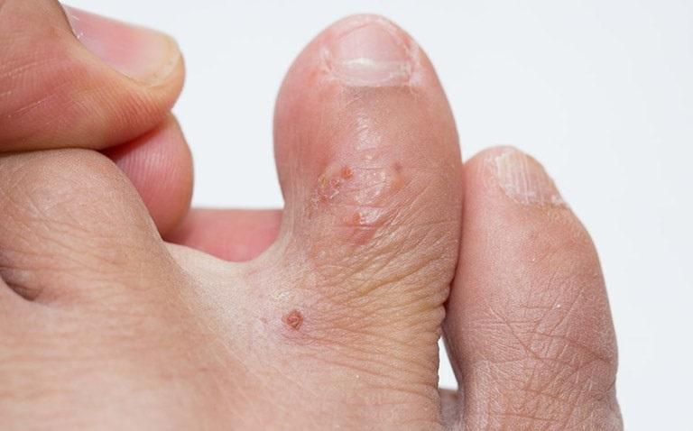 Bệnh tổ đỉa ngón chân