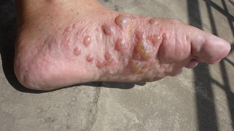 Bệnh tổ đỉa ở lòng bàn chân là bệnh rất nhiều người gặp phải