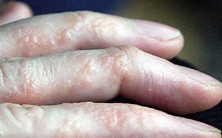 Bệnh tổ đỉa ở ngón tay