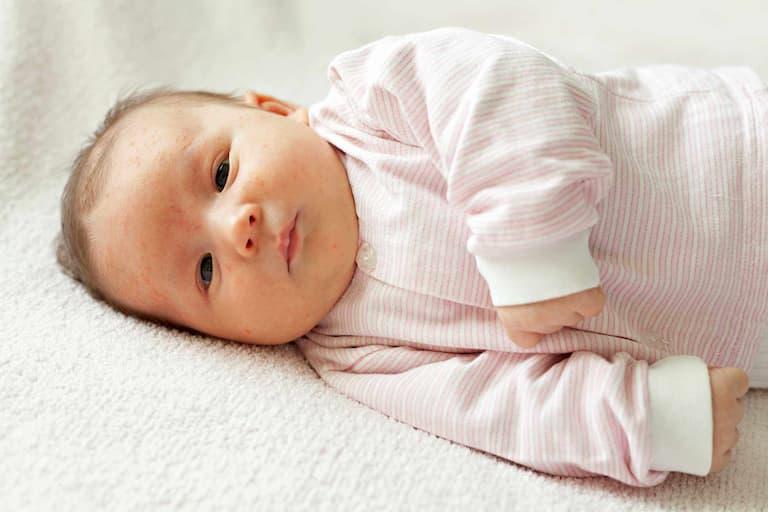 Bệnh vảy nến ở trẻ em có thể xuất hiện ở nhiều vị trí khác nhau