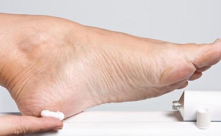 Các loại thuốc bôi tổ đỉa ở lòng bàn chân mang lại hiệu quả rất tích cực