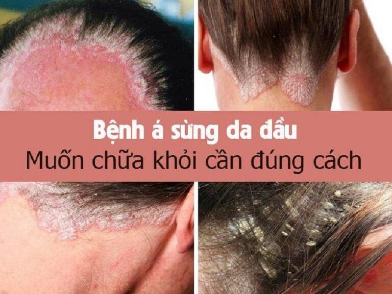 Điều trị á sừng da đầu cần kiên trì, đúng cách