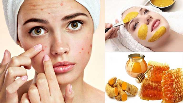 Nghệ giúp ngăn ngừa vi khuẩn xâm nhập, hút mủ vùng da bị mụn nhọt