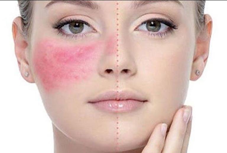 Cần lựa chọn phương pháp điều trị phù hợp để tái tạo da bị nhiễm độc Corticoid