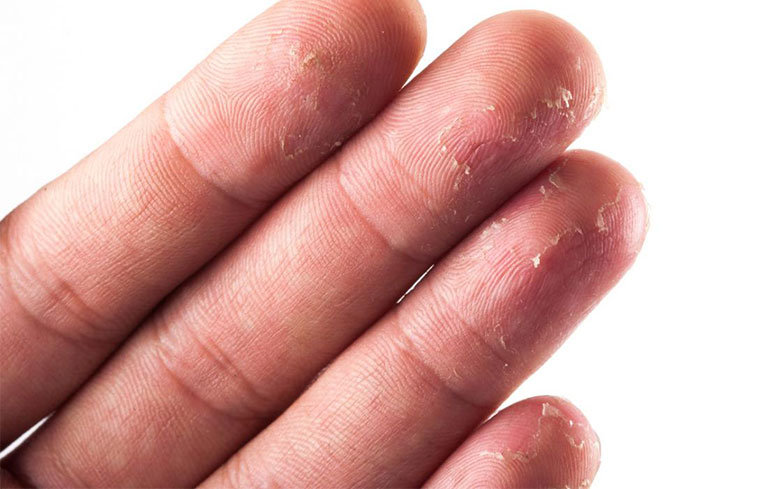 á sừng ngón tay