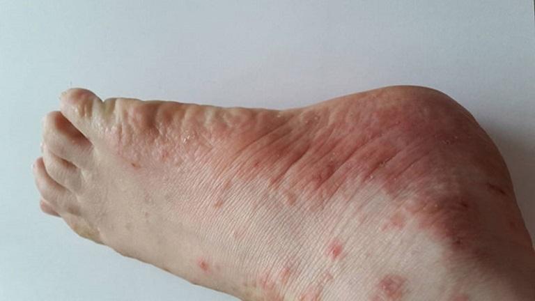 Có nhiều nguyên nhân gây nên bệnh tổ đỉa ở ngón chân