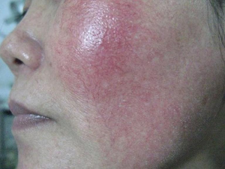 Da bị giãn mao mạch do bị nhiễm độc Corticoid