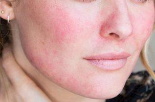 Da mặt bị đỏ rát và ngứa