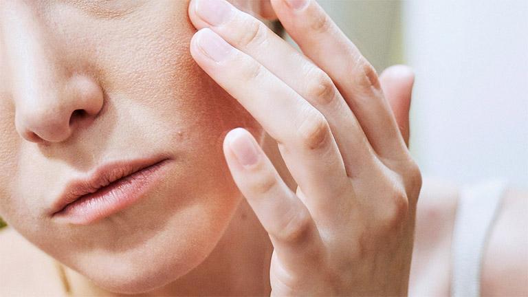 Da mặt bị khô và sần ngứa vì sao?