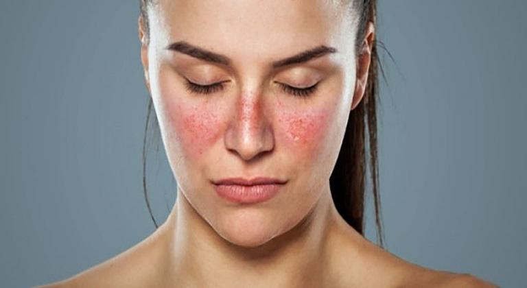 Da mặt bị ngứa da dị ứng thời tiết