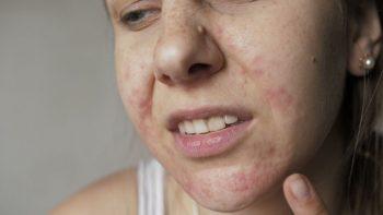 Da mặt bị ngứa và nổi mụn - nguyên nhân cùng cách điều trị