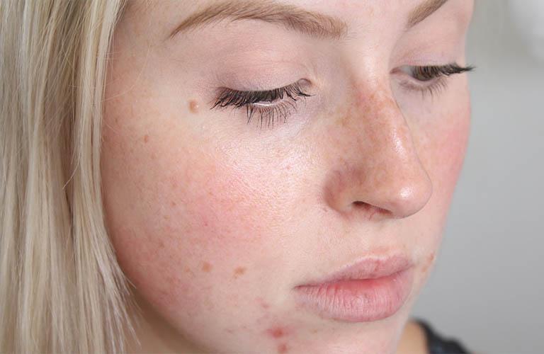 Da mặt ngứa sần sùi nguyên nhân do đâu?