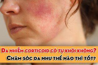 Da nhiễm Corticoid có tự khỏi không?