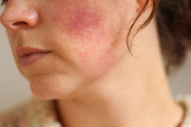 Da nhiễm Corticoid có tự khỏi được không là thắc mắc của nhiều người