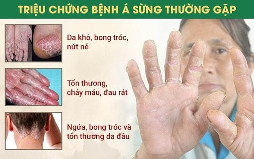 Các triệu chứng bệnh á sừng