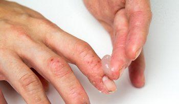 Đầu ngón tay bị ngứa nổi mụn nước