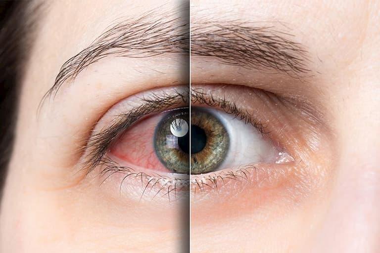 Dị ứng cũng là nguyên nhân gây ngứa mắt