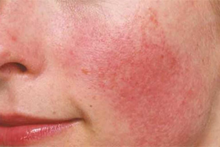 Dị ứng da cũng được xem là nguyên nhân gây ngứa vùng lông mày