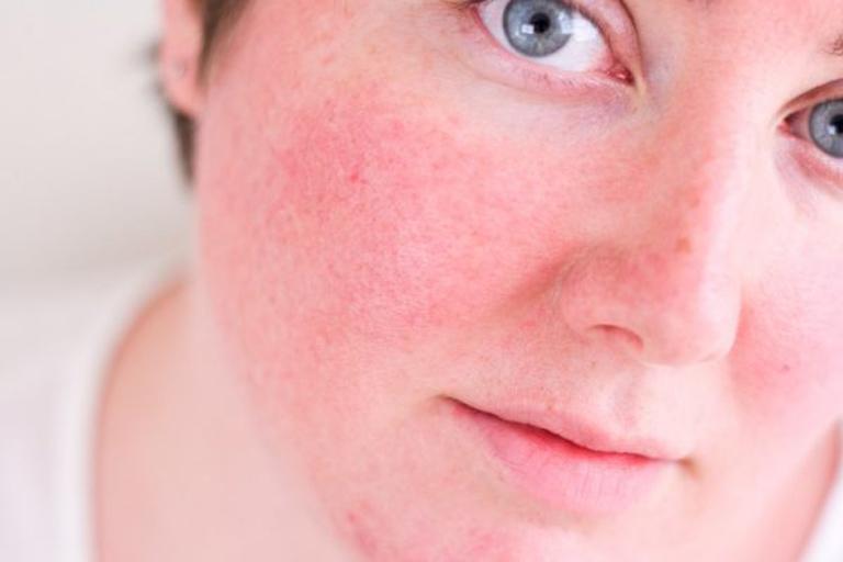 Hình ảnh da nhiễm Corticoid