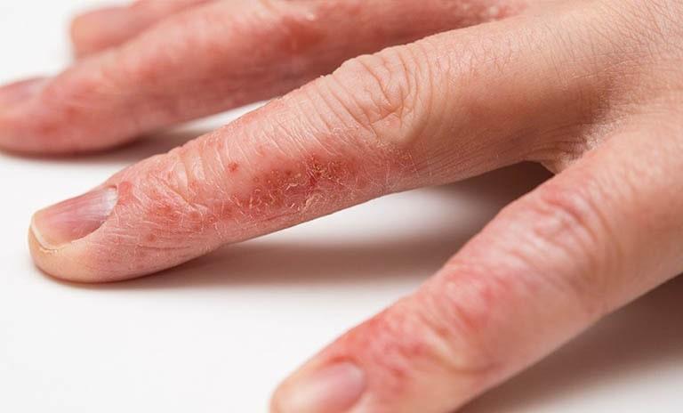 Hình ảnh viêm da cơ địa ở ngón tay