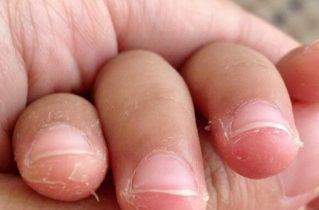 Lột da tay bị ngứa - nguyên nhân và cách điều trị