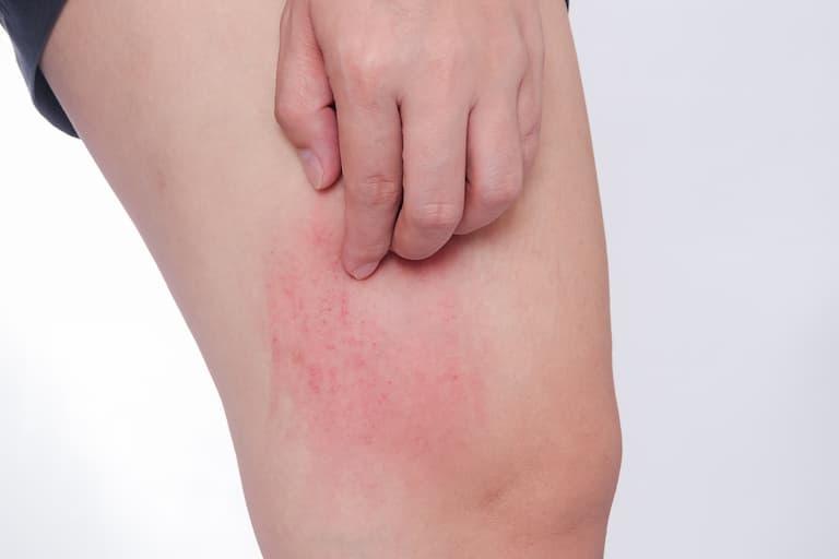 Mề đay cũng được xem là một trong những nguyên nhân gây bệnh