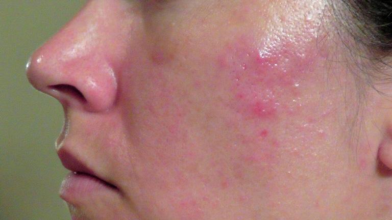 Vi khuẩn P.acnes là một trong các nguyên nhân chính gây nên mụn trứng cá bọc