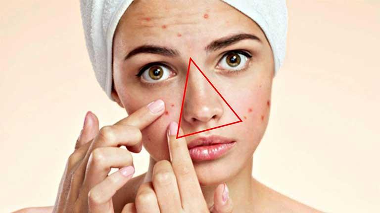 Mụn đinh râu nằm ở xung quanh miệng, nhiều dây thần kinh nên dễ dẫn tới méo miệng