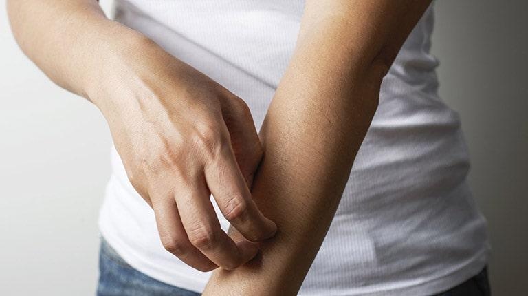 Ngứa ngáy khó chịu là triệu chứng điển hình của tình trạng bệnh khi tái đi phát lại nhiều lần