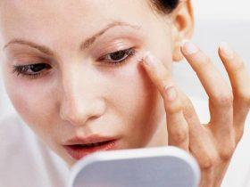Ngứa vùng da quanh mắt rất dễ gặp