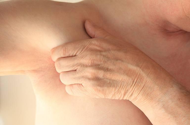 Ngứa vùng nách ảnh hưởng tới tinh thần cũng như sức khỏe người bệnh