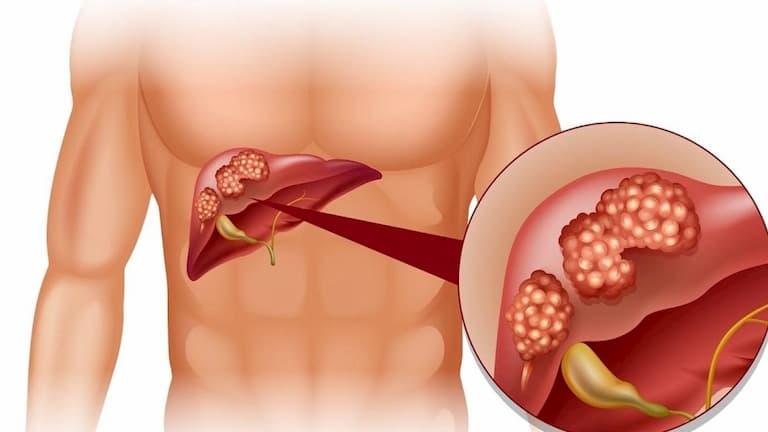 Người bị mắc các bệnh về gan, thận cũng dễ bị ngứa