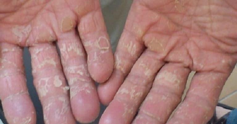 Nguyên nhân khiến da tay bị lột và ngứa