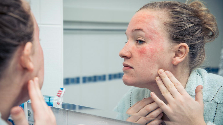 Thời gian điều trị da nhiễm Corticoid phụ thuộc vào nhiều yếu tố khác nhau