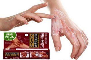 Thuốc trị tổ đỉa của Nhật