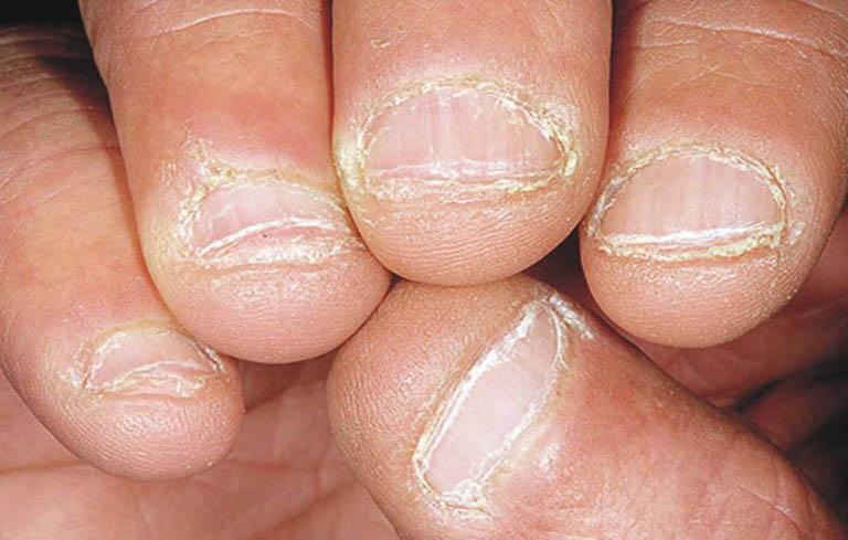 Nếu không được diều trị kịp thời bệnh có thể gây biến dạng móng