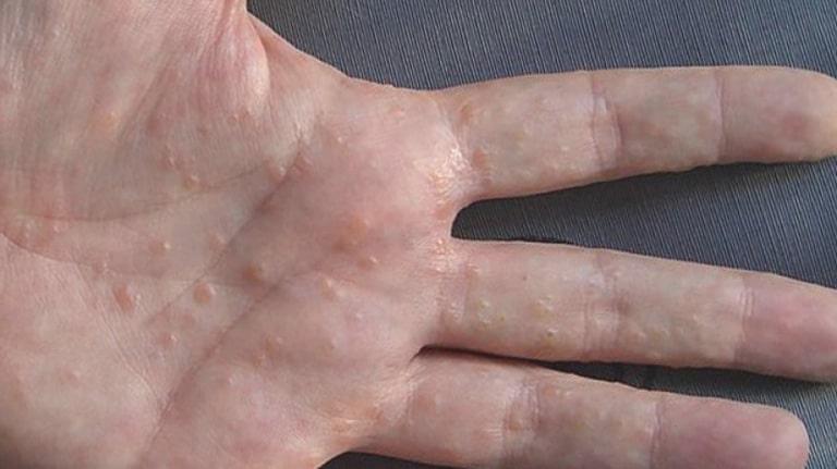 Tổ đỉa ở tay là một trong những bệnh ngoài da không hiếm gặp